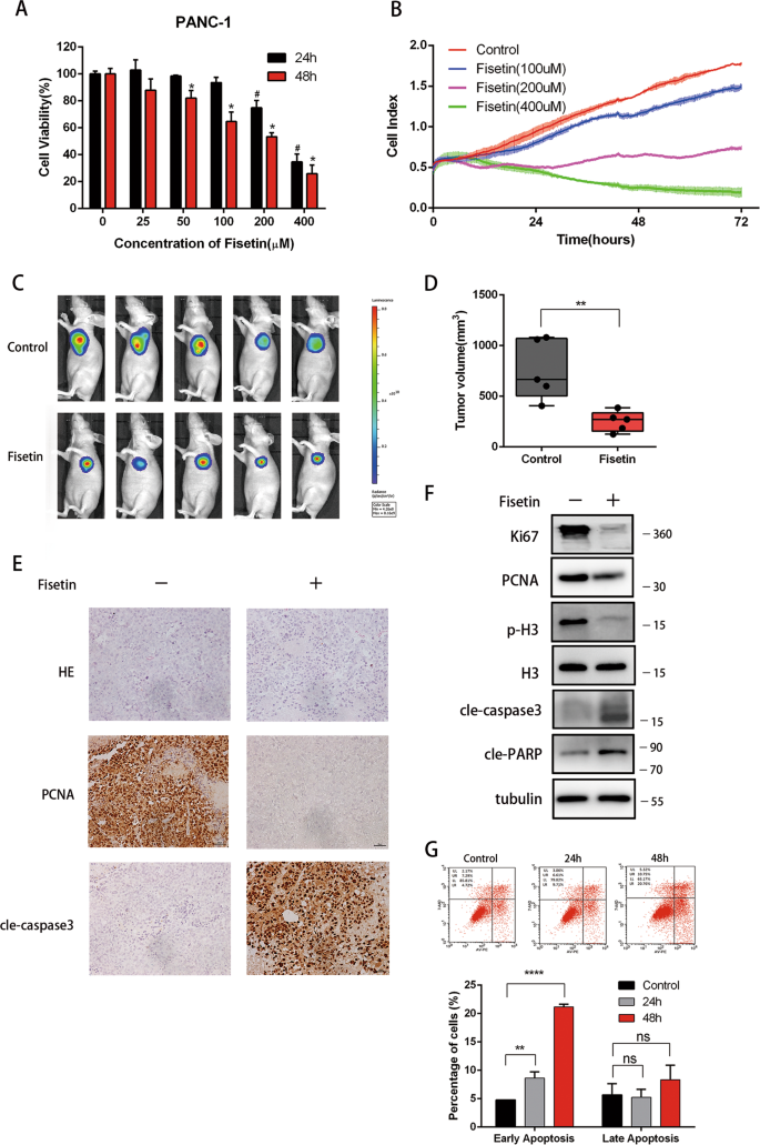 Fisetin induces autophagy in pancreatic cancer cells via