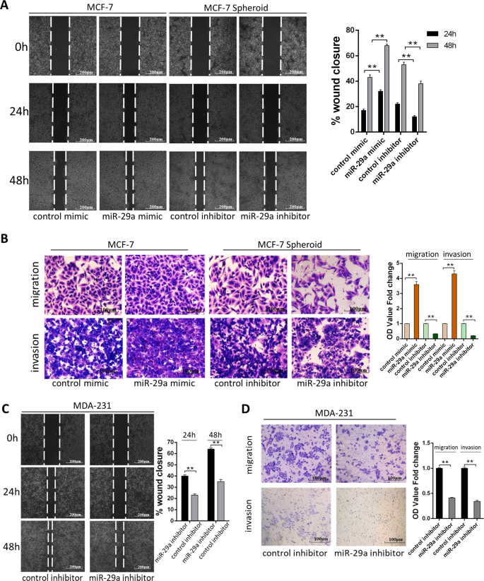 miR-29a contributes to breast cancer cells epithelial–mesenchymal