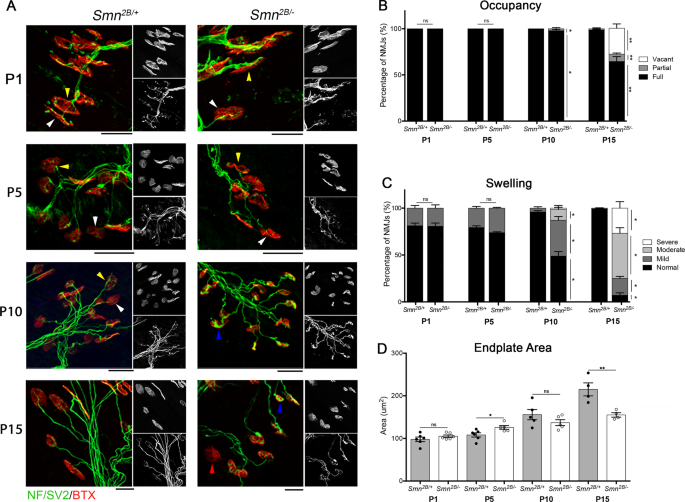 Reduced P53 levels ameliorate neuromuscular junction loss without affe