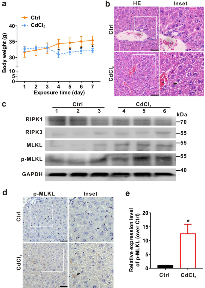 Drp1 and RB interaction to mediate mitochondria-dependent necroptosis