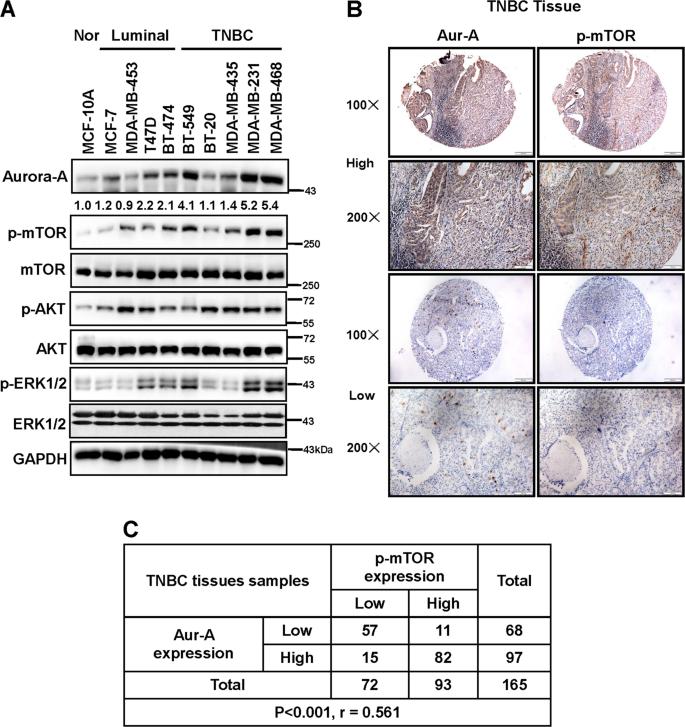 Aurora-A/ERK1/2/mTOR axis promotes tumor progression in triple-negativ