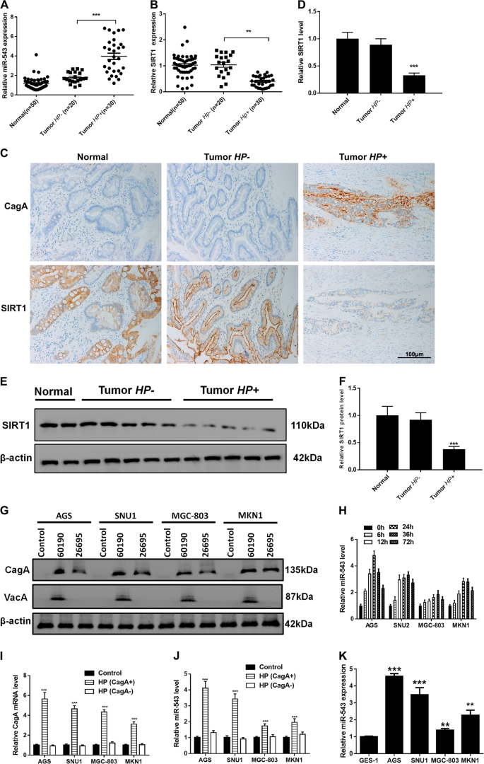 SIRT1-targeted miR-543 autophagy inhibition and epithelial–mesen