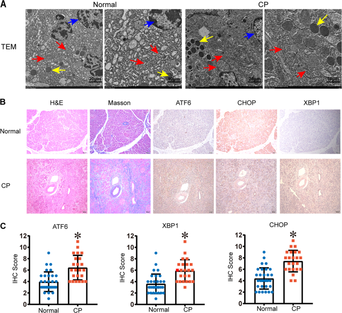 ATF6 regulates the development of chronic pancreatitis by inducing p53