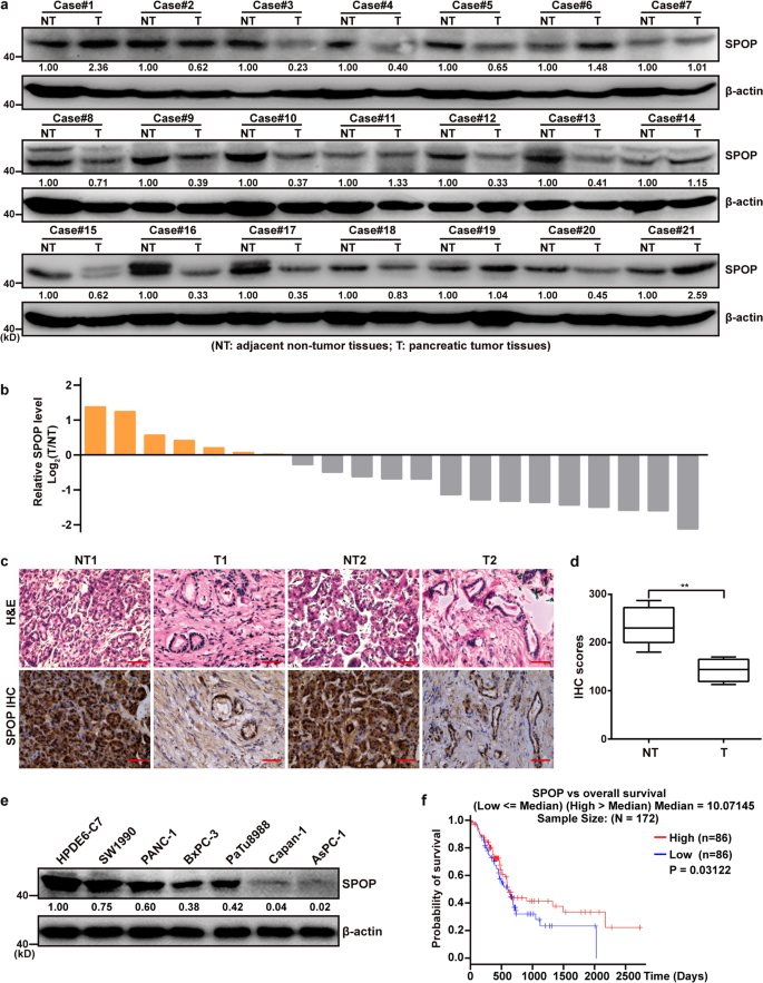SPOP suppresses pancreatic cancer progression by promoting the degrada