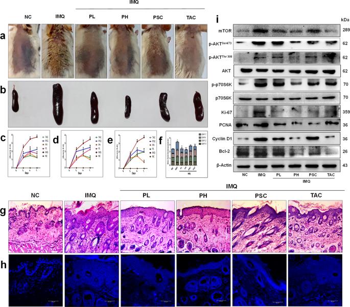 Piperlongumine regulates epigenetic modulation and alleviates psoriasi