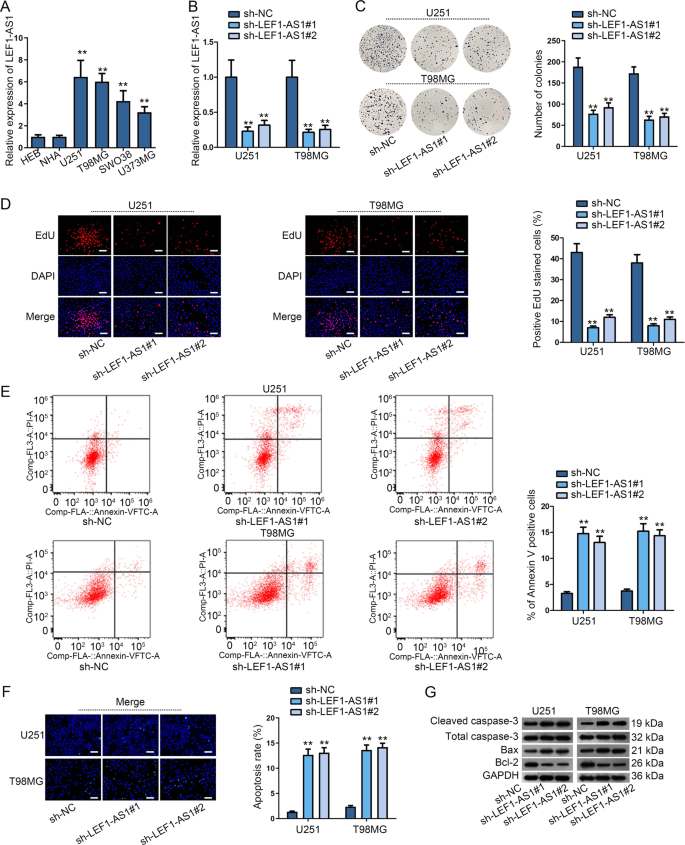Lef1 As1 Accelerates Tumorigenesis In Glioma By Sponging Mir 489 3p To Enhance Higd1a Cell Death Disease
