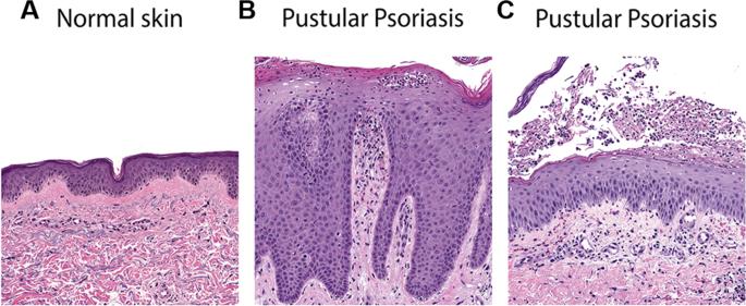 erythrodermic psoriasis pathology)
