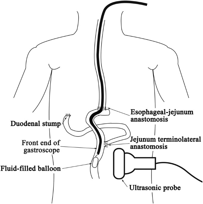 Balloon-assisted ultrasonic localization: a novel technique for