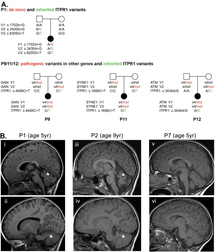 De novo ITPR1 variants are a recurrent cause of early-onset ataxia