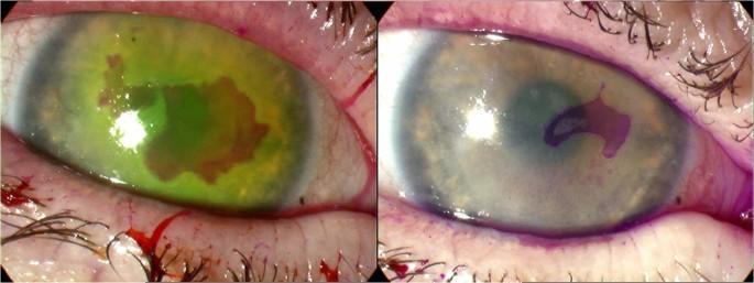 Update On Herpes Simplex Keratitis Management Eye