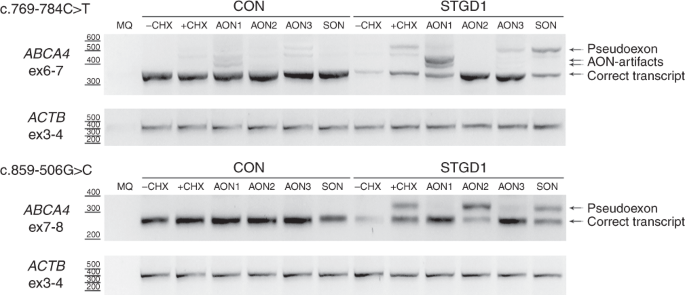 Deep-intronic ABCA4 variants explain missing heritability in