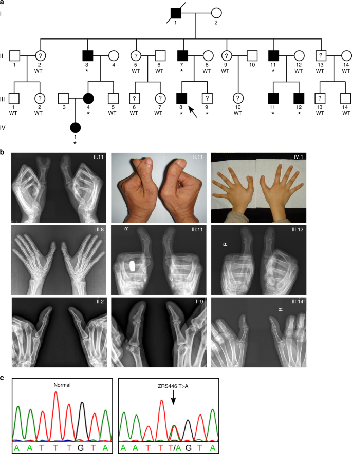 A novel ZRS variant causes preaxial polydactyly type I by increased