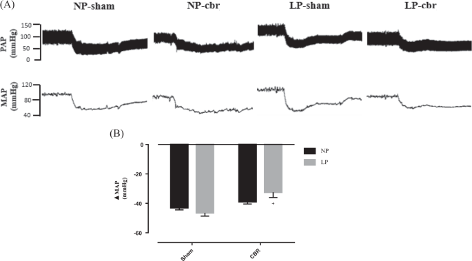 Carotid body removal normalizes arterial blood pressure and