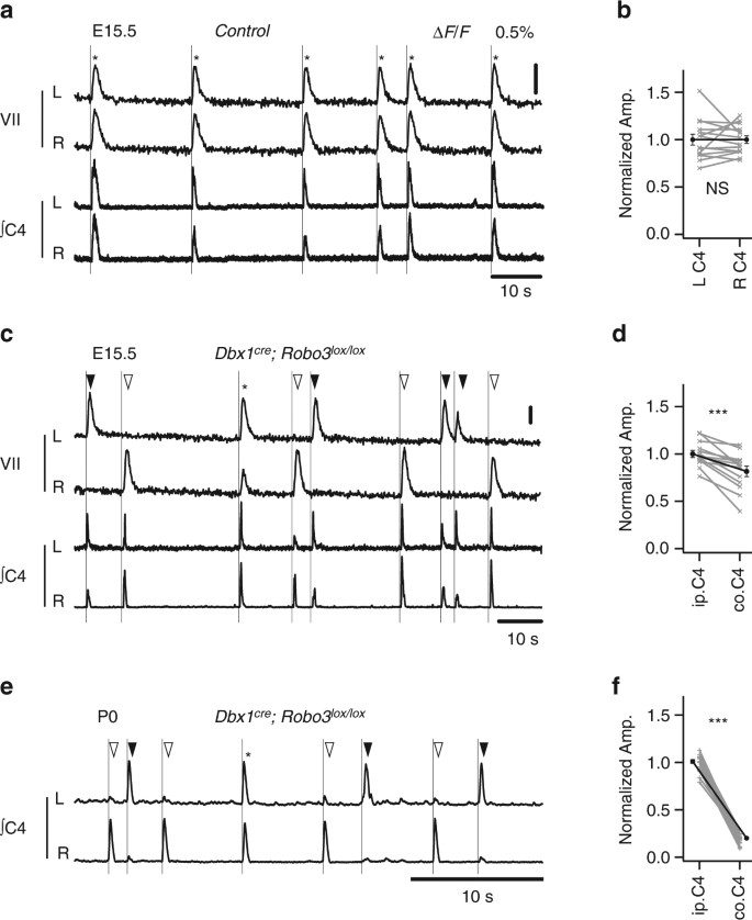 A V0 core neuronal circuit for inspiration | Nature