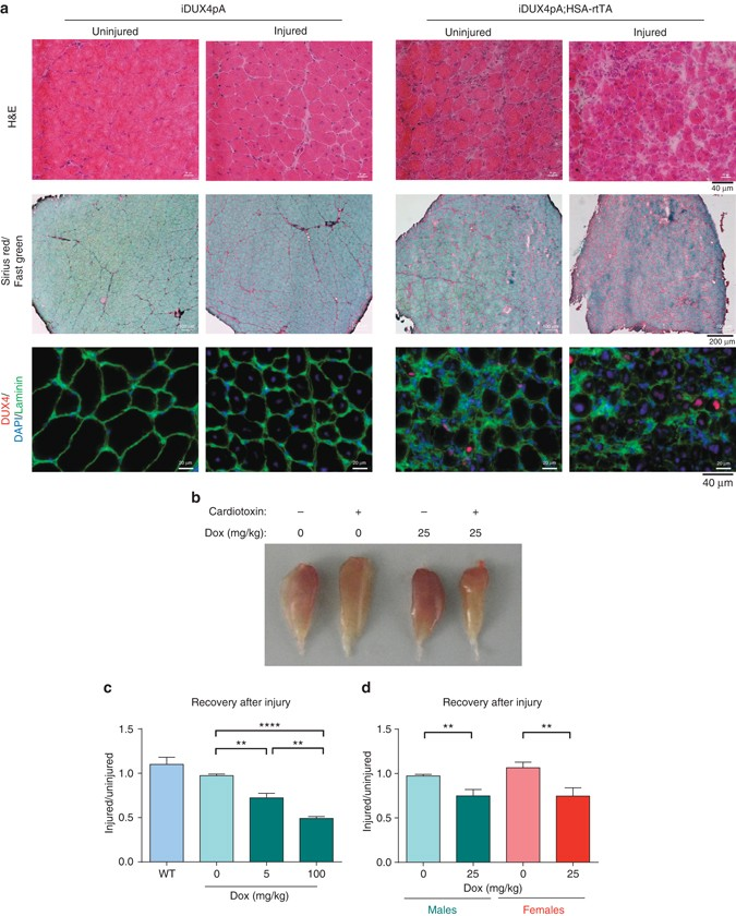 Muscle pathology from stochastic low level DUX4 expression in an