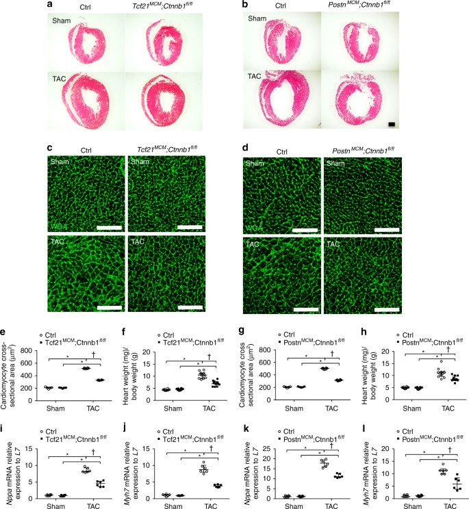 Loss of β-catenin in resident cardiac fibroblasts attenuates