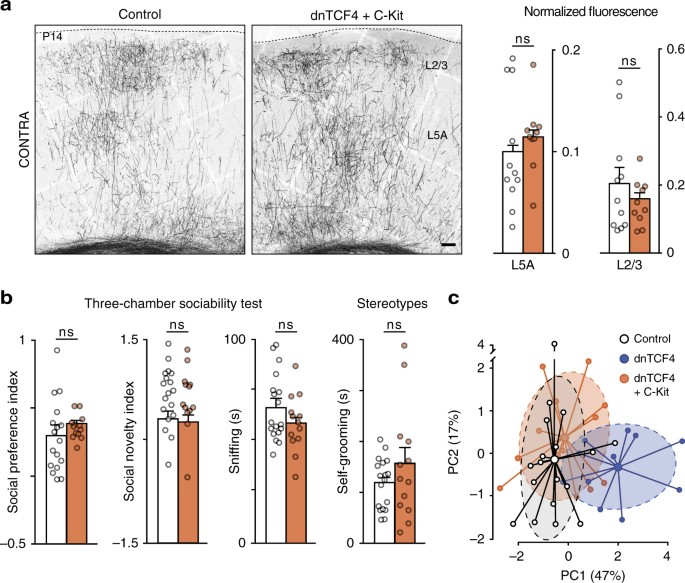 Perturbed Wnt signaling leads to neuronal migration delay, altered
