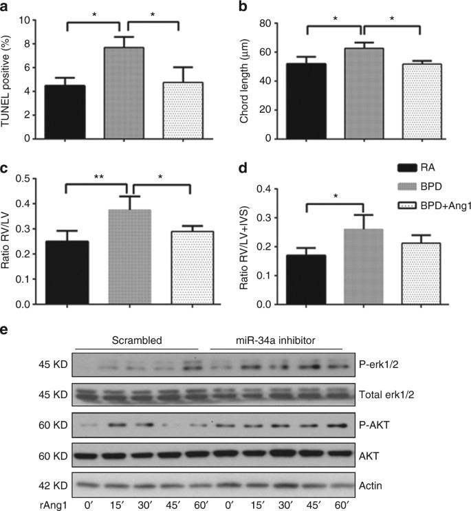 Hyperoxia causes miR-34a-mediated injury via angiopoietin-1 in