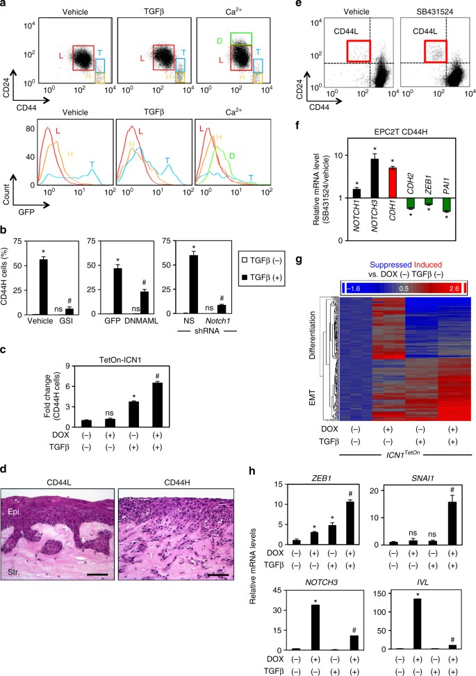 Interplay between Notch1 and Notch3 promotes EMT and tumor