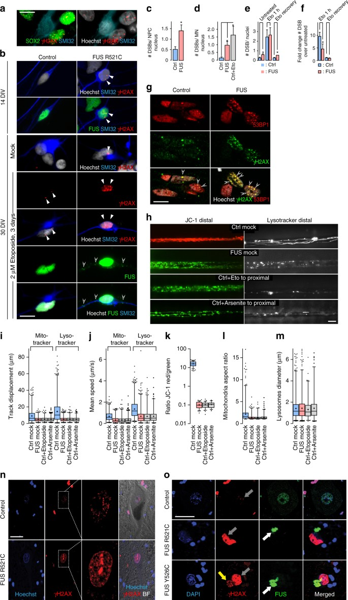 Impaired DNA damage response signaling by FUS-NLS mutations leads to