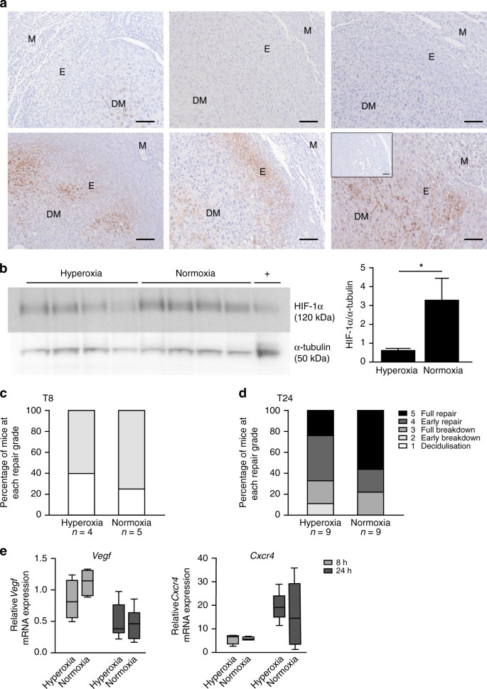 Hypoxia and hypoxia inducible factor-1α are required for normal