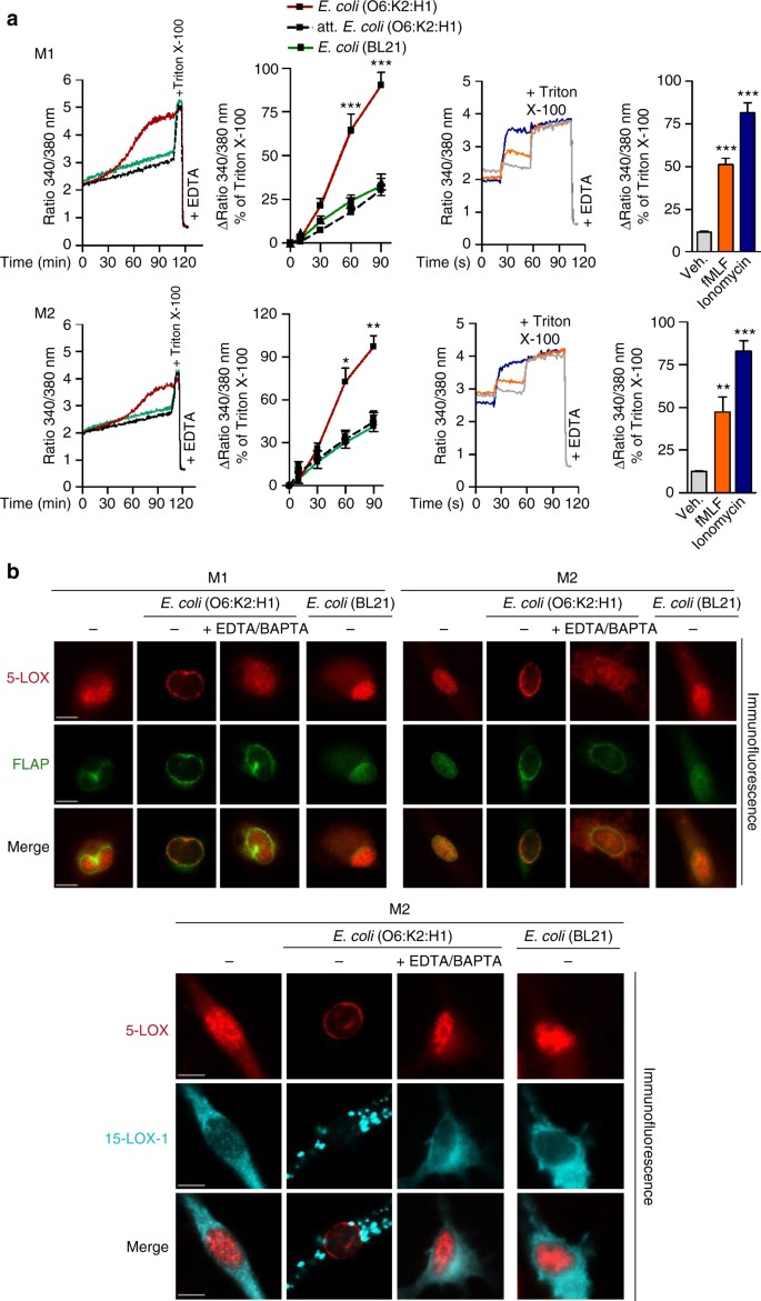 Human macrophages differentially produce specific resolvin