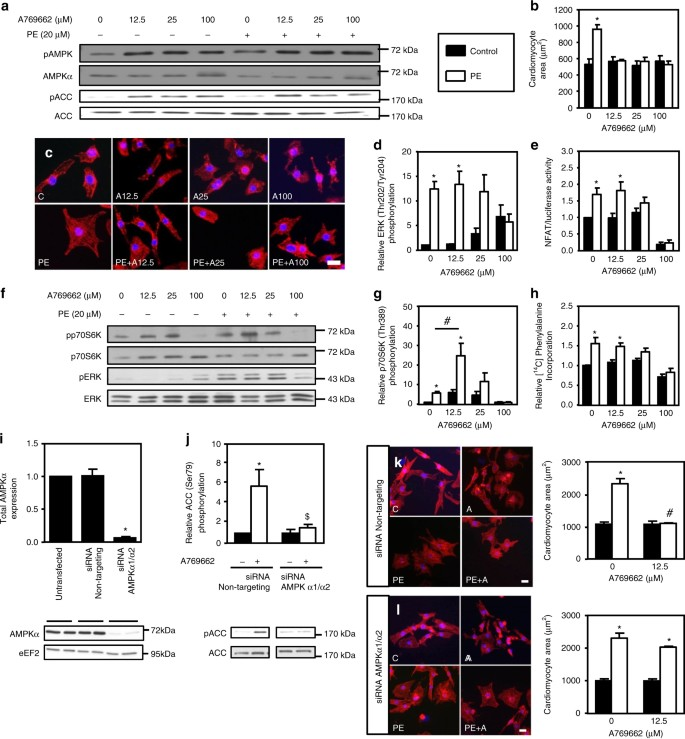 AMPK Activation Counteracts Cardiac Hypertrophy By Reducing