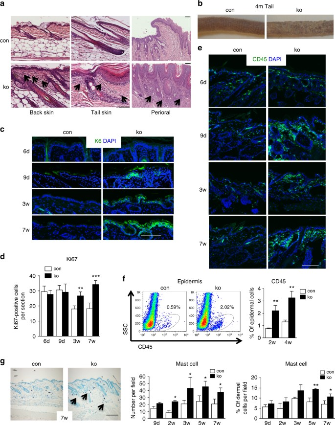 chronic skin inflammation in mice with a keratinocyte-restricted deletion  of n-wasp  a h&e-stained back, tail, and perioral skin sections of  7-week-old mice