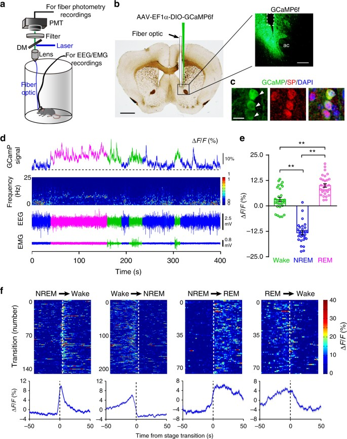 Nucleus acbens controls wakefulness by a subpopulation of ... on