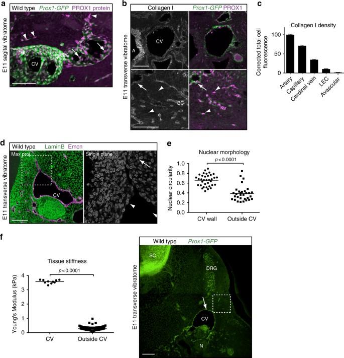 Matrix stiffness controls lymphatic vessel formation through