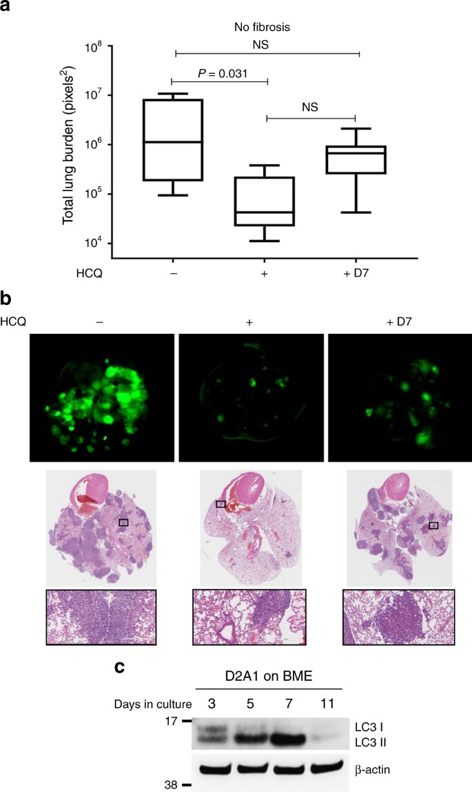 Autophagy promotes the survival of dormant breast cancer