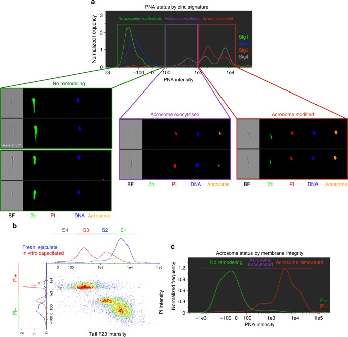 Zinc ion flux during mammalian sperm capacitation   Nature