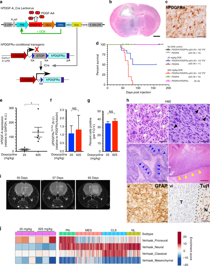 A PDGFRα-driven mouse model of glioblastoma reveals a stathmin1