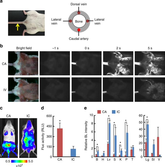 A reliable murine model of bone metastasis by injecting