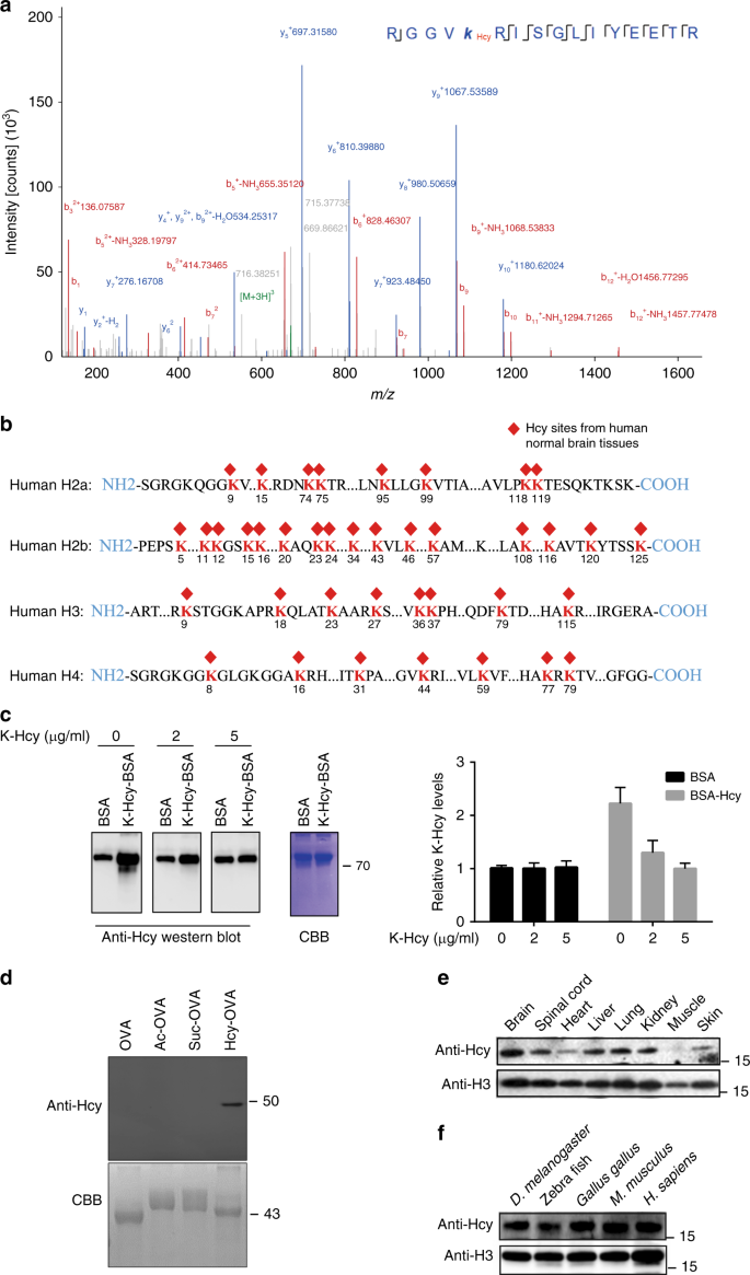 Elevated H3K79 homocysteinylation causes abnormal gene