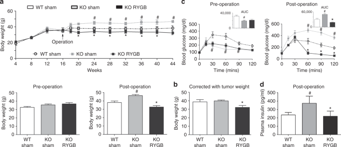 Prevention of pancreatic acinar cell carcinoma by Roux-en-Y