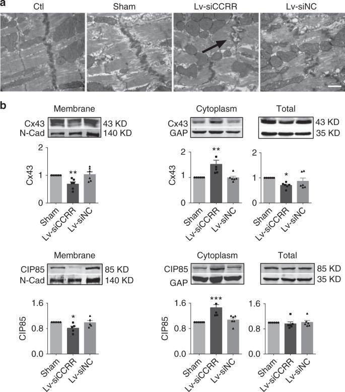 Long non-coding RNA CCRR controls cardiac conduction via regulating