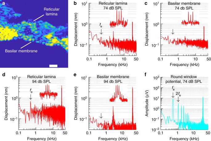 A mechanoelectrical mechanism for detection of sound envelopes in