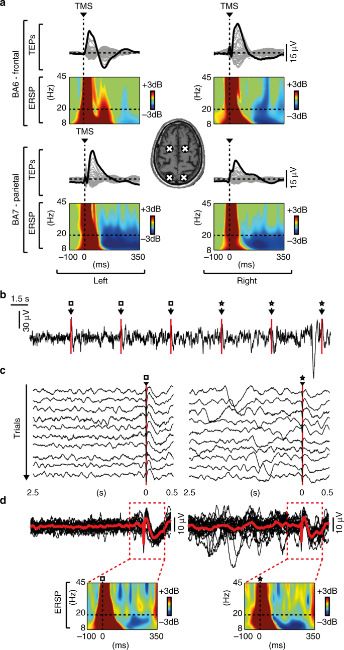 Sleep-like cortical OFF-periods disrupt causality and