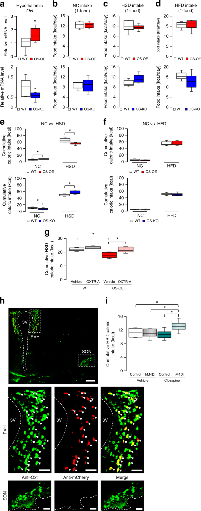 Neuronal SIRT1 regulates macronutrient-based diet selection through