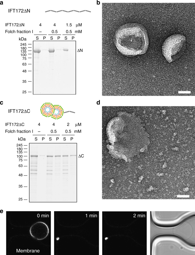 Membrane association and remodeling by intraflagellar