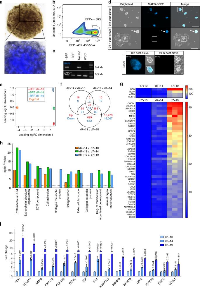 3D organoid-derived human glomeruli for personalised podocyte