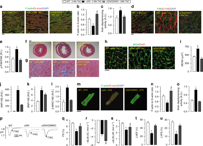 PI3Kα-regulated gelsolin activity is a critical determinant of