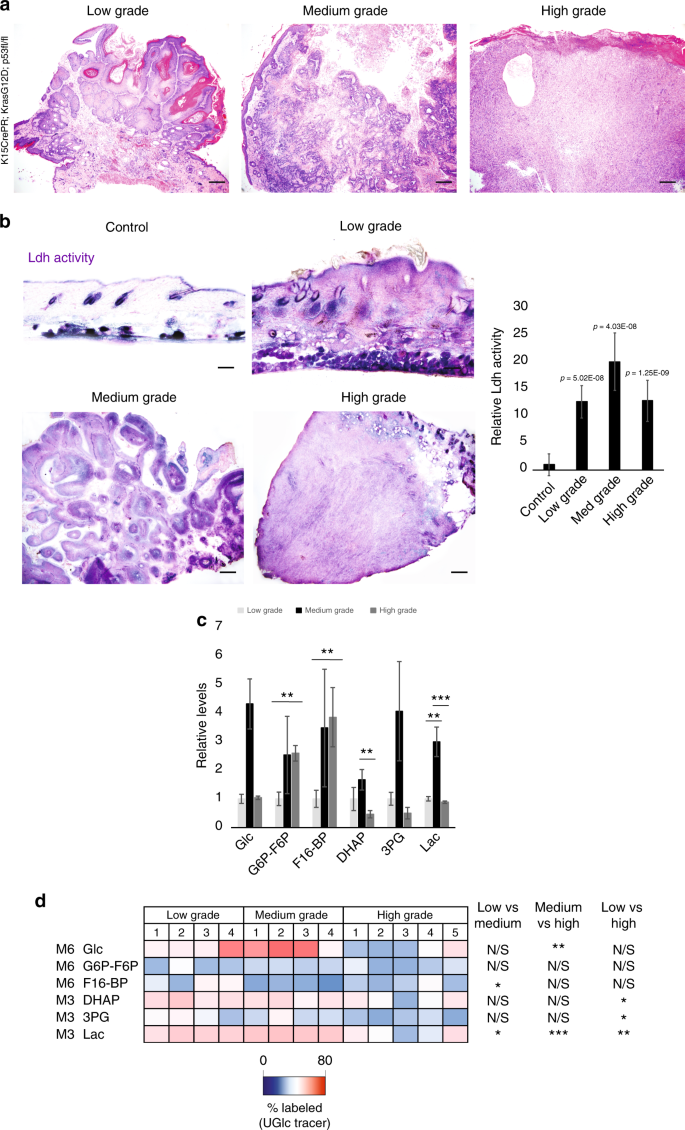 Increased lactate dehydrogenase activity is dispensable in squamous