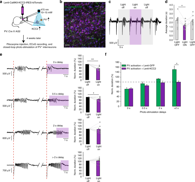 KCC2 overexpression prevents the paradoxical seizure
