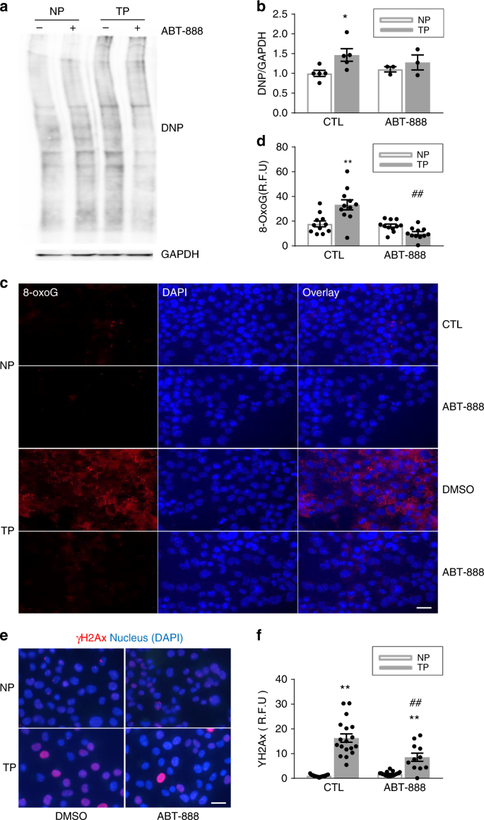 DNA damage-induced PARP1 activation confers cardiomyocyte