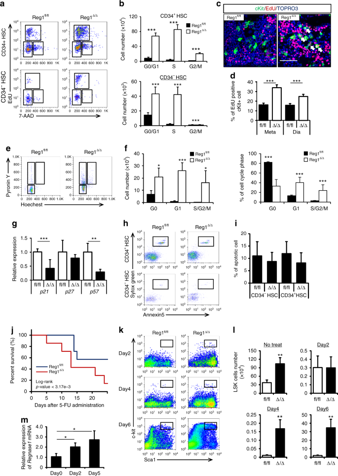 Regnase-1-mediated post-transcriptional regulation is