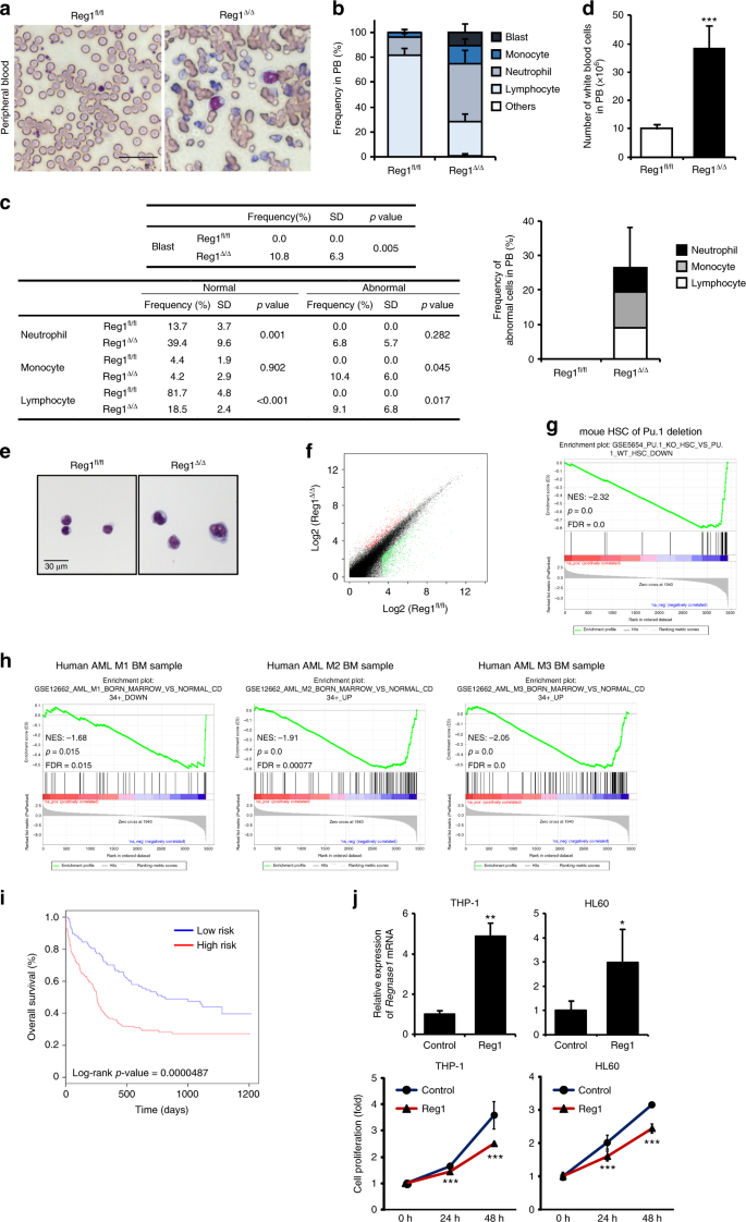 Regnase-1-mediated post-transcriptional regulation is essential for
