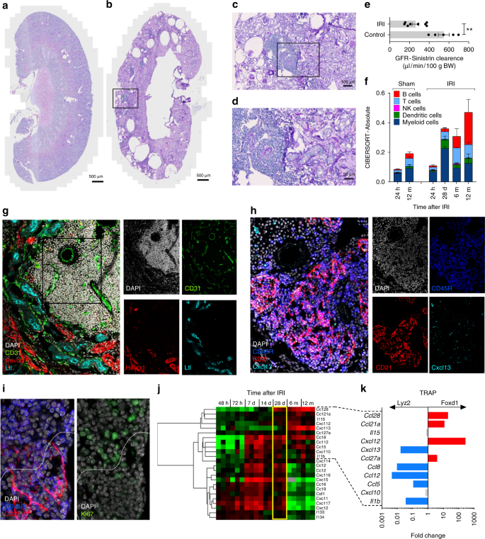 A late B lymphocyte action in dysfunctional tissue repair