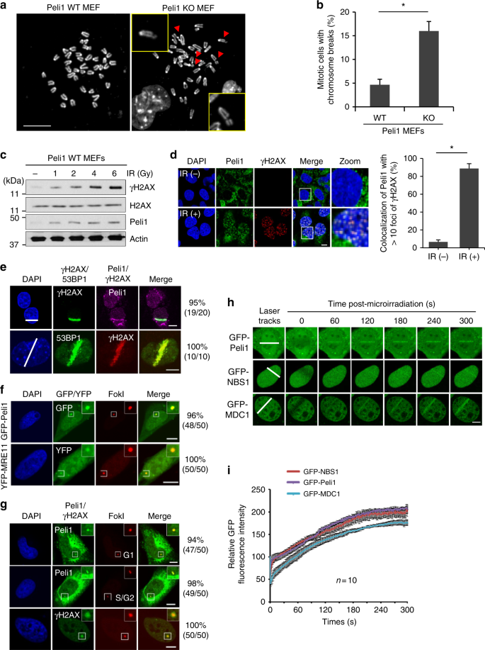 Pellino1 Regulates Reversible Atm Activation Via Nbs1 Ubiquitination At Dna Double Strand Breaks Nature Communications